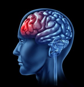 Brain Injuries and your Rights